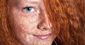Cách trị nám da bằng nha đam hiệu quả, trắng mịn ngay tức thì
