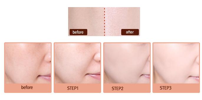 Sự thay đổi của làn da sau khi sử dụng Pure White Shiseido