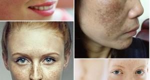 Nám da mặt và cách khắc phục nám da mặt hiệu quả và an toàn