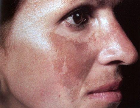 Nám da làm mất vẻ đẹp và tự tin của phụ nữ