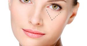 Cách chống lão hóa da vùng mắt hiệu quả và vô cùng an toàn