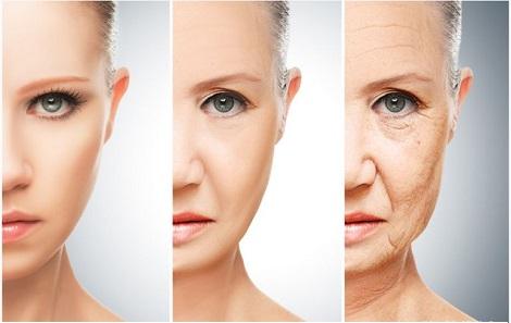 Làn da lão hóa nhiều nếp nhăn do thiếu collagen
