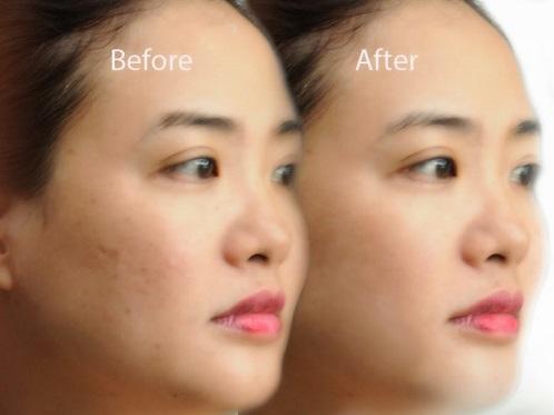 Collagen Label N - chống lão hóa nhăn da, làm đẹp da