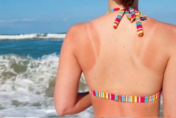 Cách làm trắng da bị cháy nắng nhanh nhất